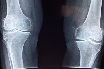 X-ray of some bones
